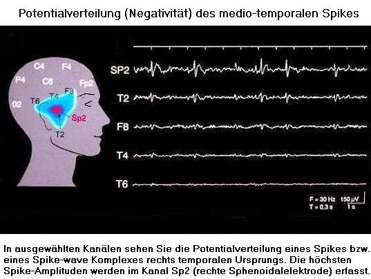 Potentialverteilung des medio-temporalen Spikes