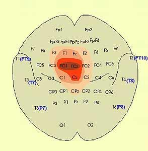 fechterstellung epilepsie